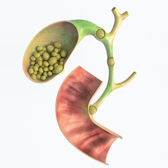 Gallstones in gallbladder and bile duct - high details - 3D rendering