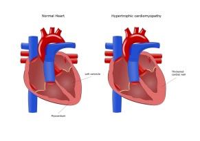 malattia cardiaca, cardiomiopatia